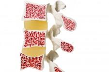 Osteoporose