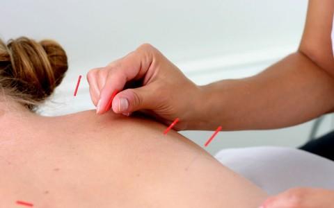 TCM / Akupunktur